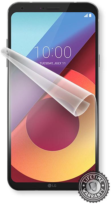 Screenshield fólie na displej pro LG Q6 M700A